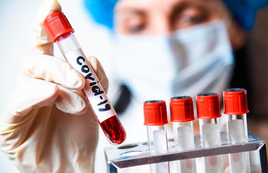 В Беларуси зарегистрированы 104 тыс. 286 человек с положительным тестом на COVID-19 с начала пандемии, сообщает Минздрав в своем телеграм-канале.